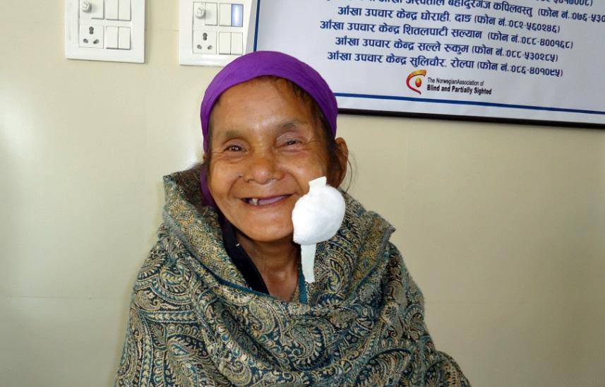 Bishnu Sara Magar smiler etter at bandasjen på hennes venstre øye er tatt av på Lamahi øyesykehus.